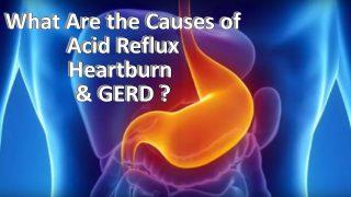 GERD Acid Reflux Heart Burn
